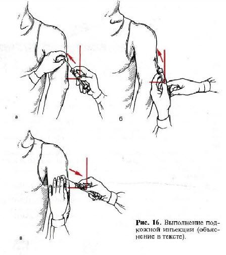 Как сделать укол в предплечье подкожно
